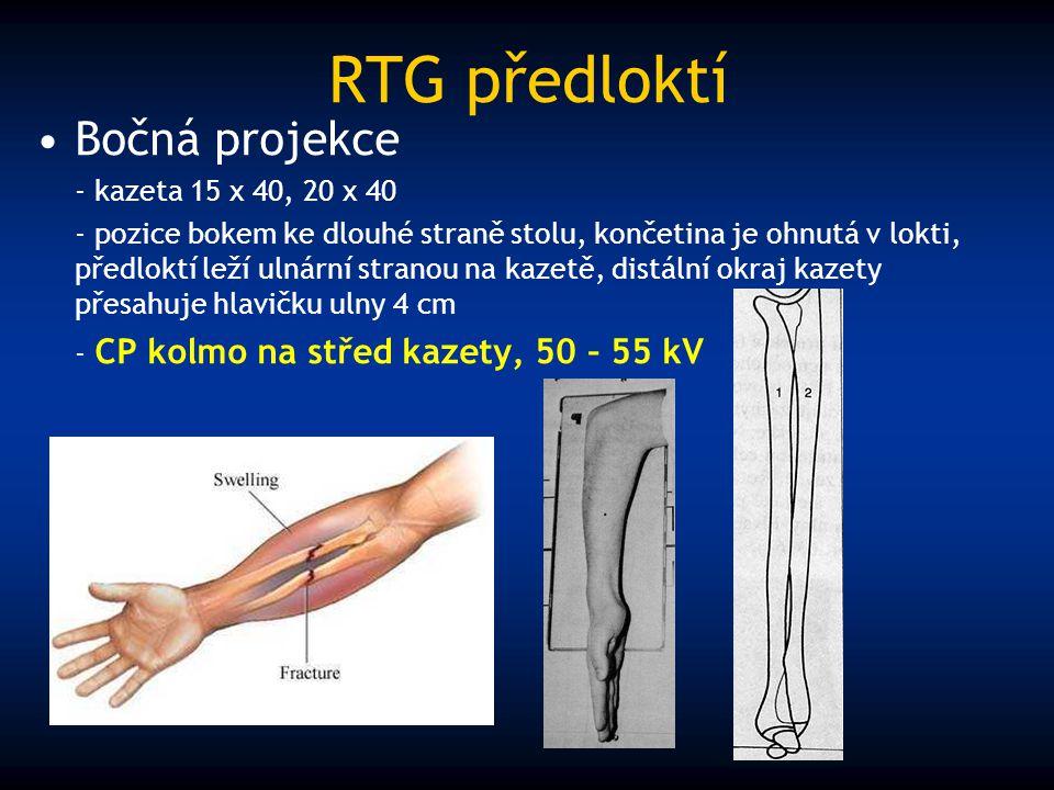 RTG předloktí Bočná projekce - kazeta 15 x 40, 20 x 40 - pozice bokem ke dlouhé straně stolu, končetina je ohnutá v lokti, předloktí leží ulnární stra
