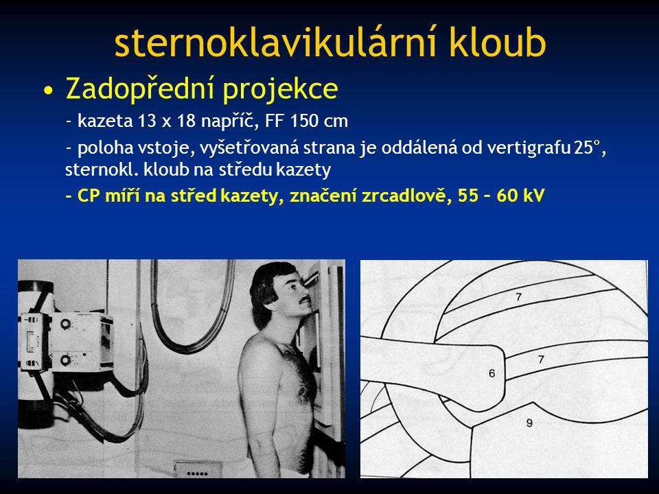 sternoklavikulární kloub Zadopřední projekce - kazeta 13 x 18 napříč, FF 150 cm - poloha vstoje, vyšetřovaná strana je oddálená od vertigrafu 25°, ste