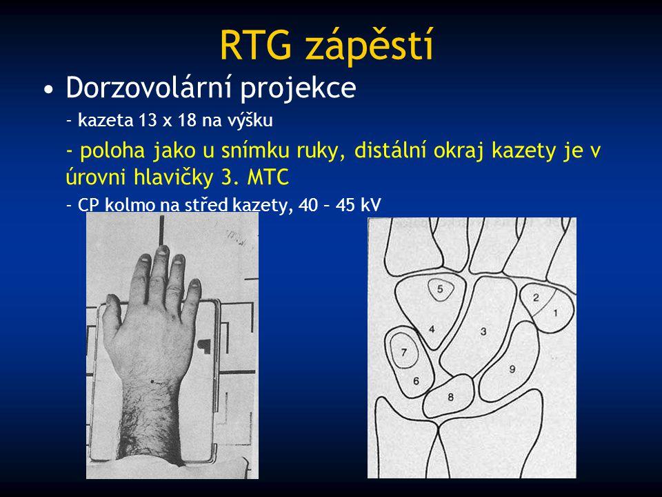 RTG zápěstí Dorzovolární projekce - kazeta 13 x 18 na výšku - poloha jako u snímku ruky, distální okraj kazety je v úrovni hlavičky 3. MTC - CP kolmo