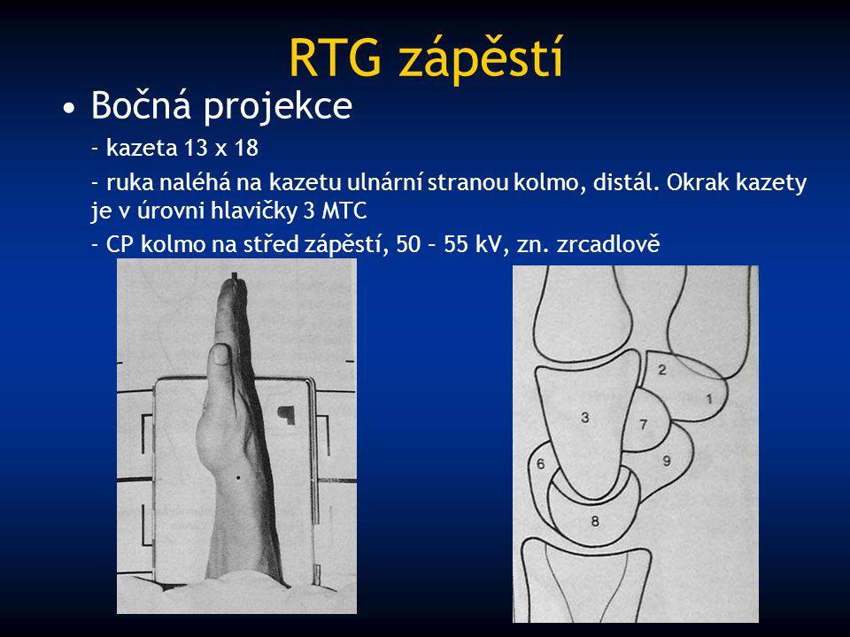 RTG zápěstí Bočná projekce - kazeta 13 x 18 - ruka naléhá na kazetu ulnární stranou kolmo, distál. Okrak kazety je v úrovni hlavičky 3 MTC - CP kolmo