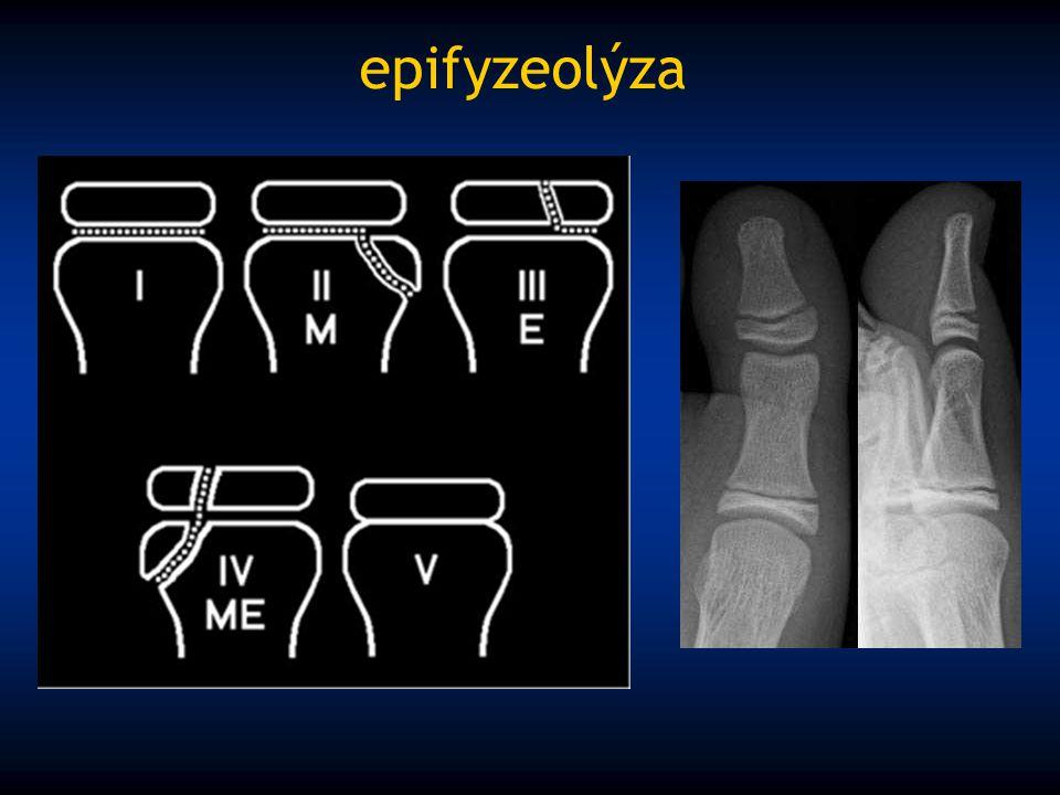 epifyzeolýza