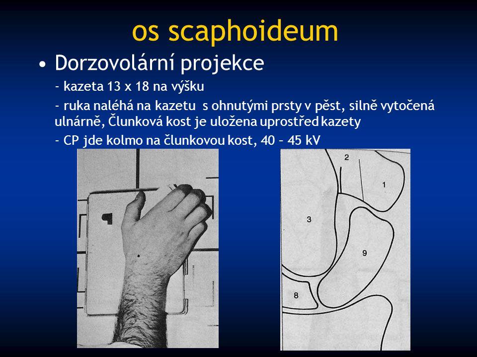 os scaphoideum Dorzovolární projekce - kazeta 13 x 18 na výšku - ruka naléhá na kazetu s ohnutými prsty v pěst, silně vytočená ulnárně, Člunková kost