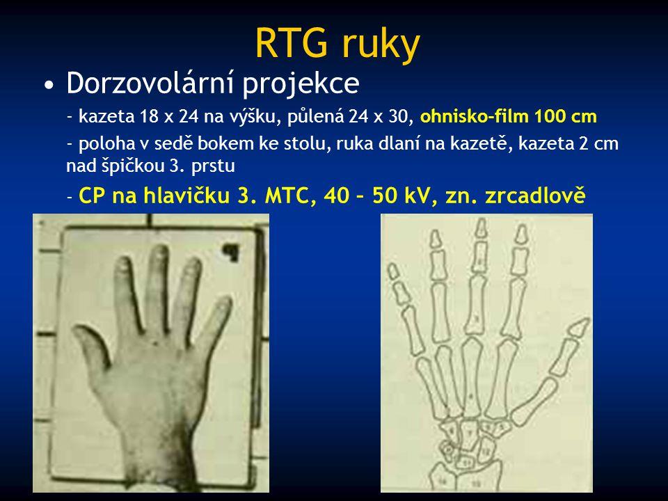 RTG ruky Dorzovolární projekce - kazeta 18 x 24 na výšku, půlená 24 x 30, ohnisko-film 100 cm - poloha v sedě bokem ke stolu, ruka dlaní na kazetě, ka