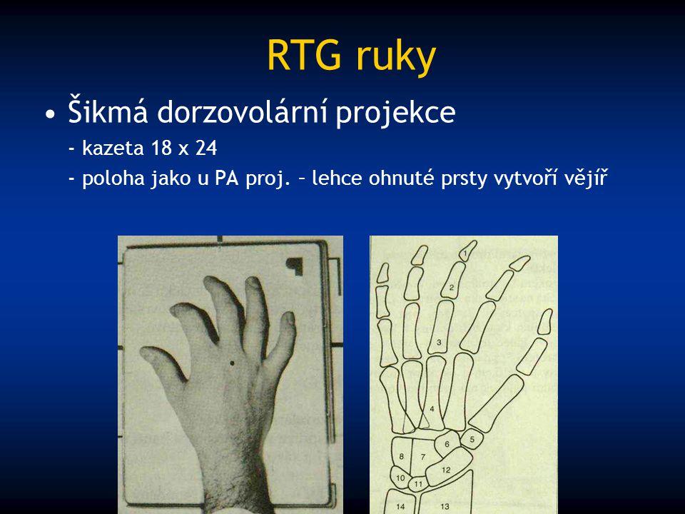 RTG ruky Šikmá dorzovolární projekce - kazeta 18 x 24 - poloha jako u PA proj. – lehce ohnuté prsty vytvoří vějíř
