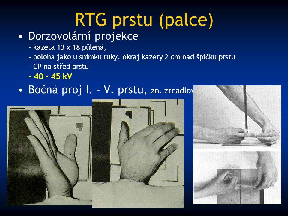 RTG prstu (palce) Dorzovolární projekce - kazeta 13 x 18 půlená, - poloha jako u snímku ruky, okraj kazety 2 cm nad špičku prstu - CP na střed prstu -