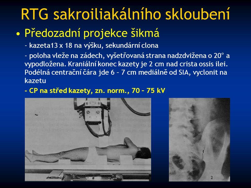 RTG sakroiliakálního skloubení Předozadní projekce šikmá - kazeta13 x 18 na výšku, sekundární clona - poloha vleže na zádech, vyšetřovaná strana nadzd