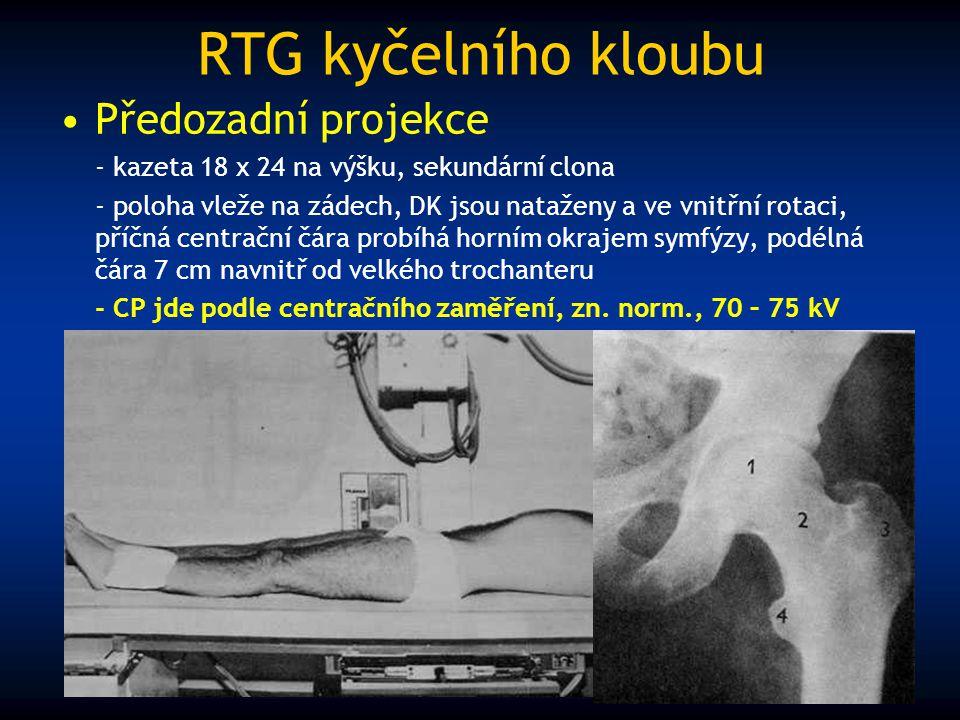 RTG kyčelního kloubu Předozadní projekce - kazeta 18 x 24 na výšku, sekundární clona - poloha vleže na zádech, DK jsou nataženy a ve vnitřní rotaci, p