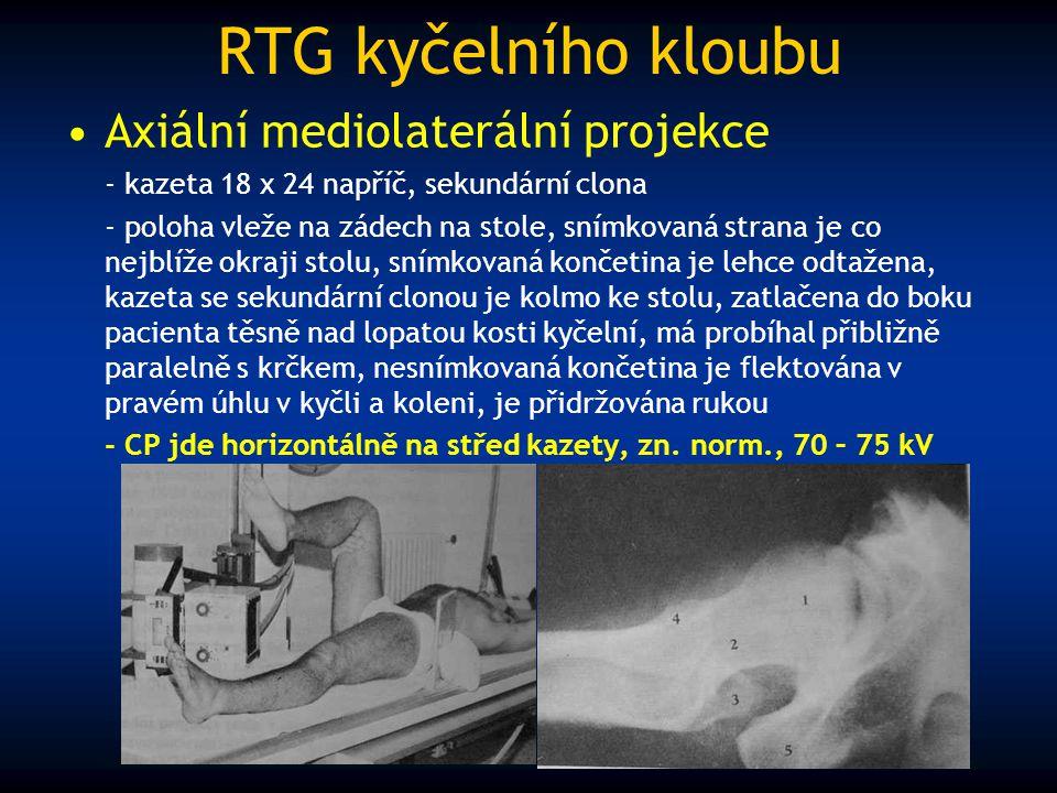 RTG kyčelního kloubu Axiální mediolaterální projekce - kazeta 18 x 24 napříč, sekundární clona - poloha vleže na zádech na stole, snímkovaná strana je