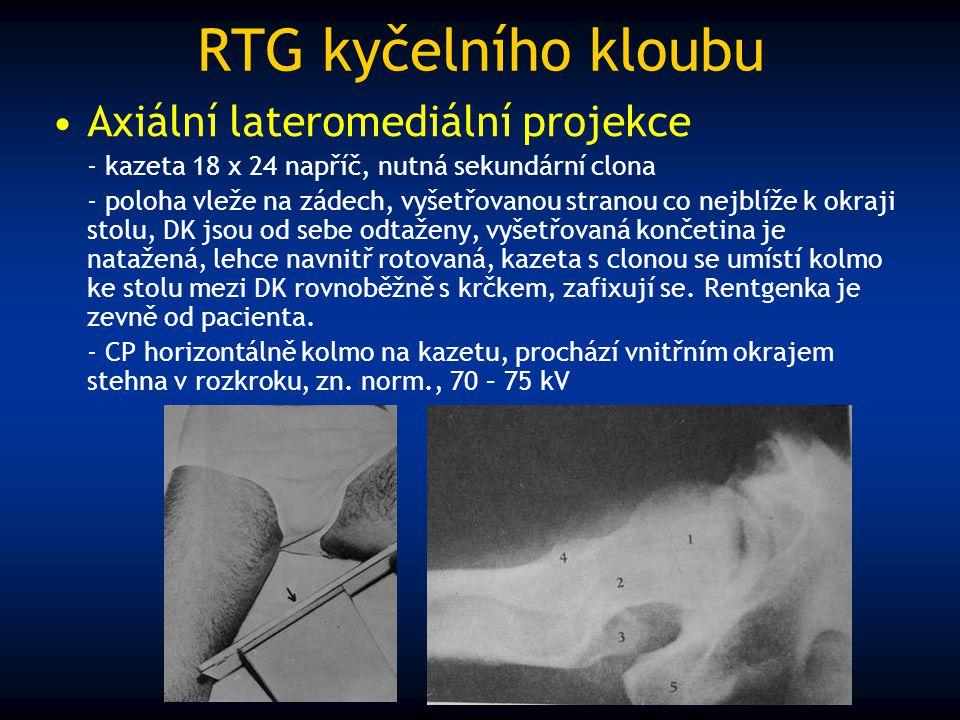RTG kyčelního kloubu Axiální lateromediální projekce - kazeta 18 x 24 napříč, nutná sekundární clona - poloha vleže na zádech, vyšetřovanou stranou co