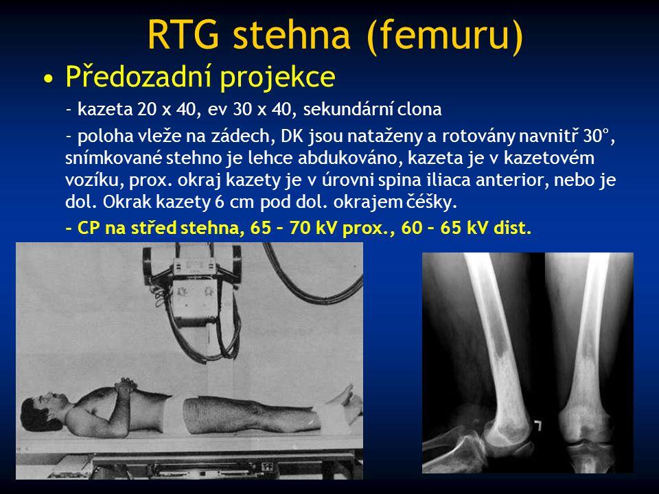 RTG stehna (femuru) Předozadní projekce - kazeta 20 x 40, ev 30 x 40, sekundární clona - poloha vleže na zádech, DK jsou nataženy a rotovány navnitř 3