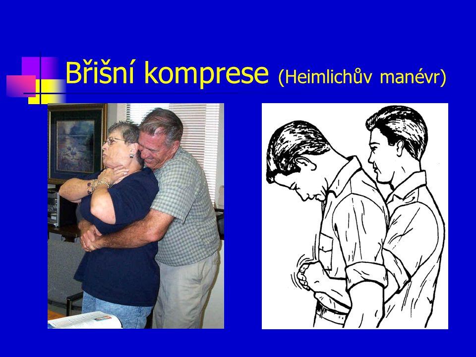 Břišní komprese (Heimlichův manévr)