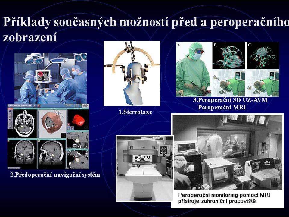 Příklady současných možností před a peroperačního zobrazení 3.Peroperační 3D UZ-AVM Peroperační MRI 2.Předoperační navigační systém 1.Stereotaxe