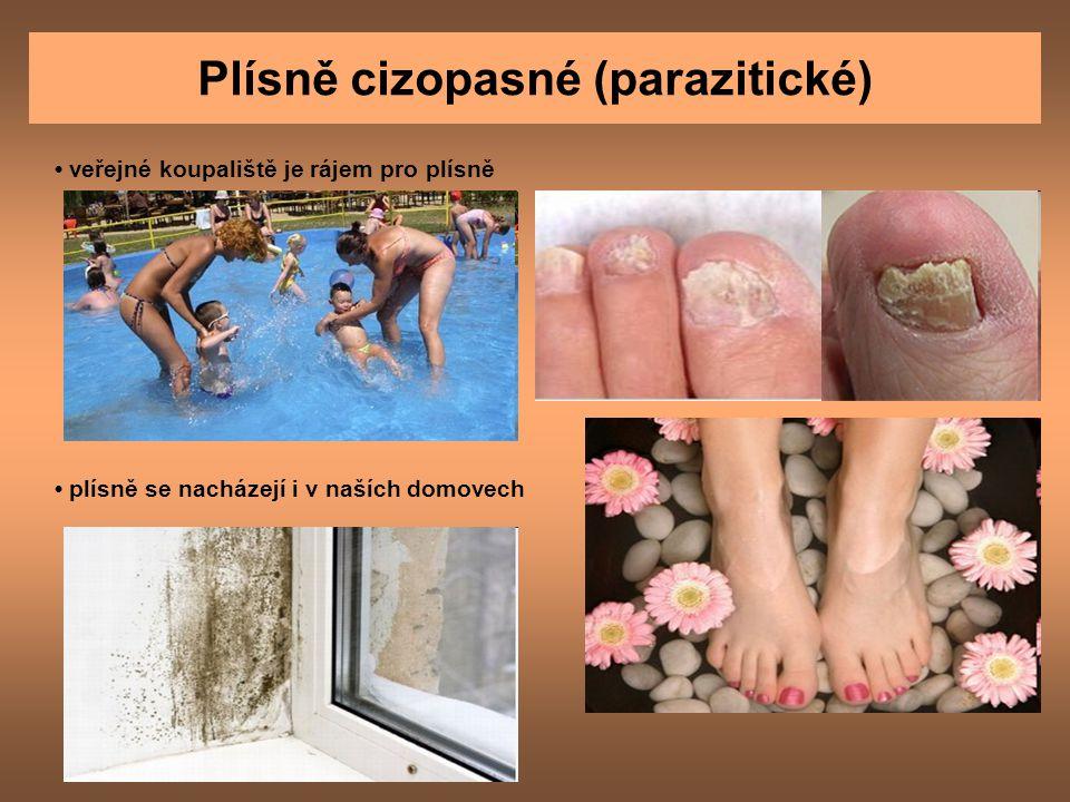 Plísně cizopasné (parazitické) veřejné koupaliště je rájem pro plísně plísně se nacházejí i v naších domovech