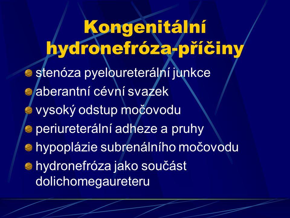Kongenitální hydronefróza-příčiny stenóza pyeloureterální junkce aberantní cévní svazek vysoký odstup močovodu periureterální adheze a pruhy hypoplázie subrenálního močovodu hydronefróza jako součást dolichomegaureteru
