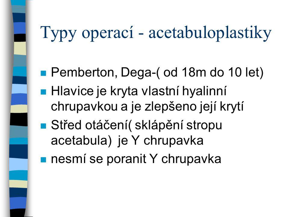 Typy operací - acetabuloplastiky n Pemberton, Dega-( od 18m do 10 let) n Hlavice je kryta vlastní hyalinní chrupavkou a je zlepšeno její krytí n Střed