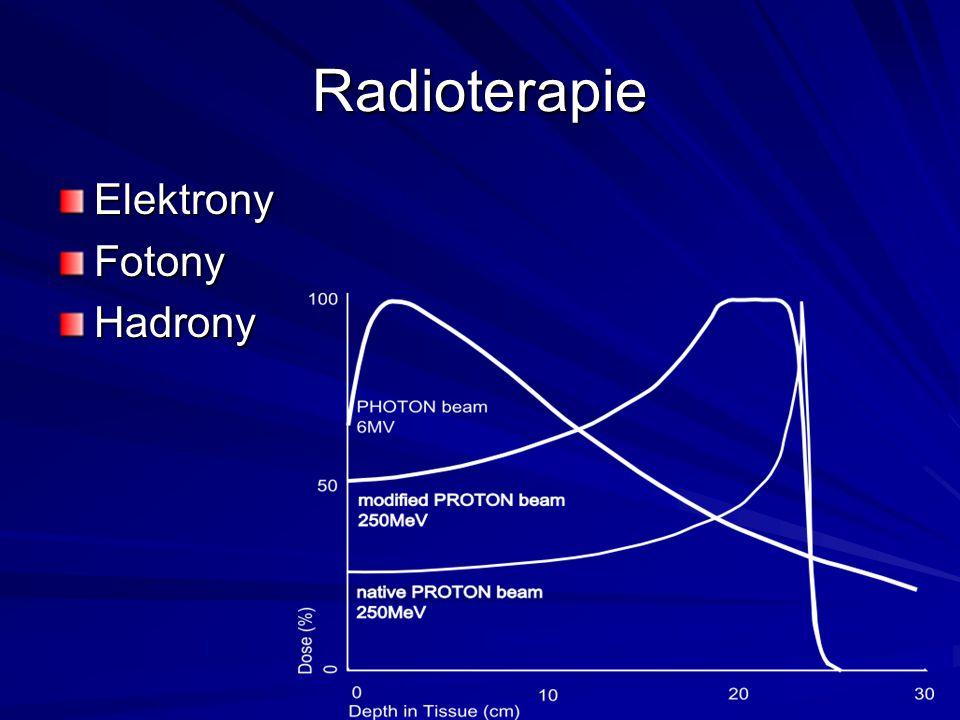 Radioterapie ElektronyFotonyHadrony