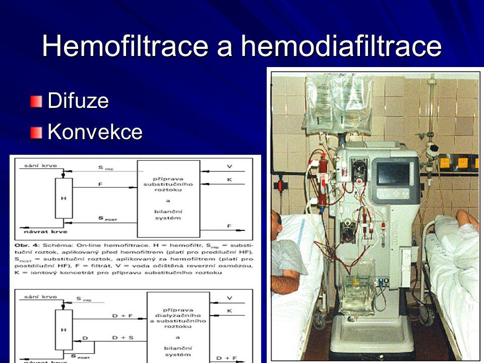 Hemofiltrace a hemodiafiltrace DifuzeKonvekce