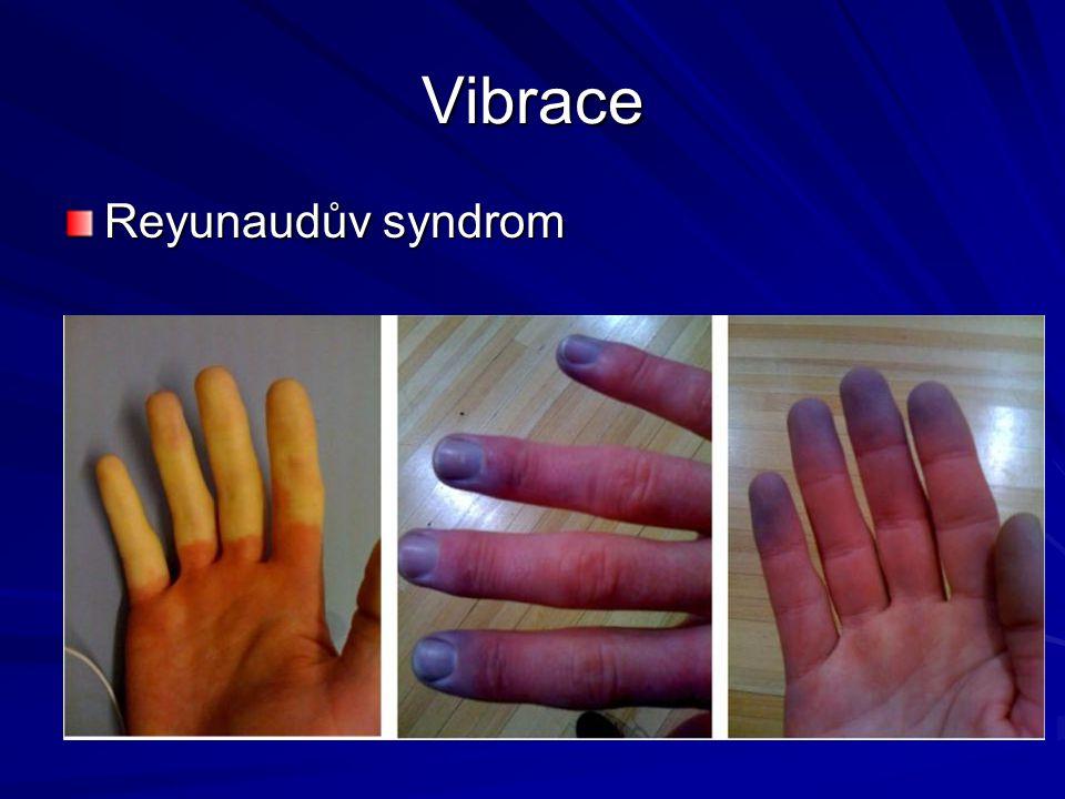 Vibrace Reyunaudův syndrom