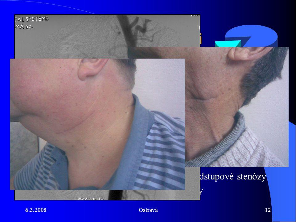 6.3.2008Ostrava12 Naše zkušenosti Příčný kožní řez Příčný kožní řez jsme provedli u 86 pacientů MM - 1pacient TIA 1. Pacient restenóza za 3 měsíce po