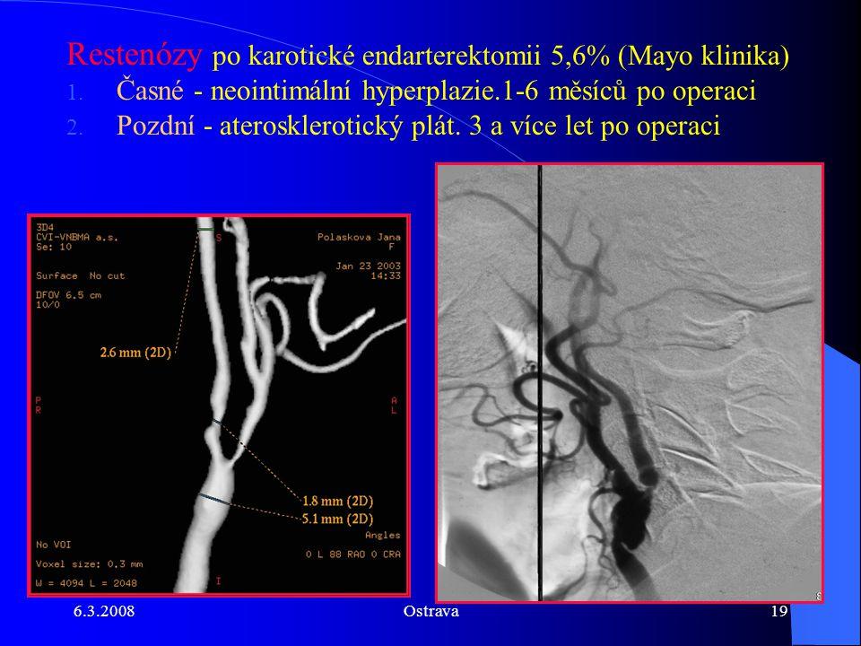 6.3.2008Ostrava19 Restenózy po karotické endarterektomii 5,6% (Mayo klinika) 1. Časné - neointimální hyperplazie.1-6 měsíců po operaci 2. Pozdní - ate
