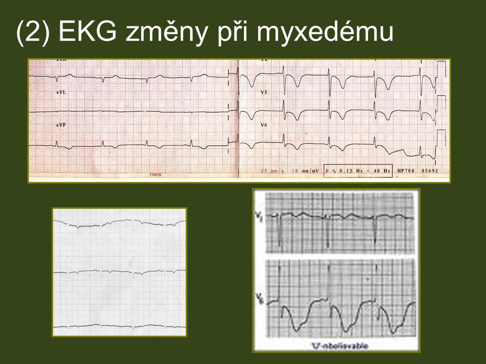 (2) EKG změny při myxedému pacientka
