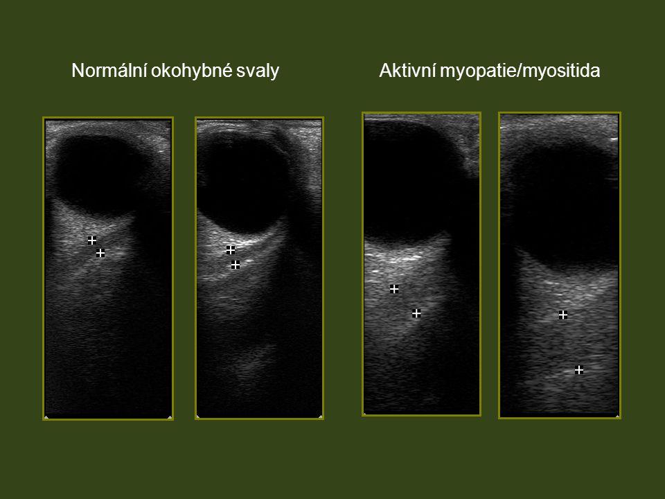 Normální okohybné svalyAktivní myopatie/myositida