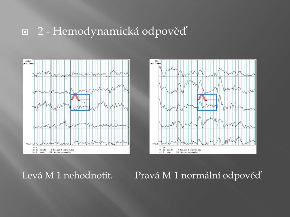  2 - Hemodynamická odpověď Levá M 1 nehodnotit. Pravá M 1 normální odpověď