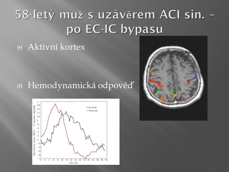  Aktivní kortex  Hemodynamická odpověď