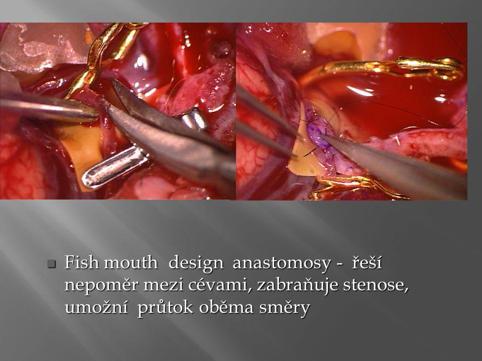 Fish mouth design anastomosy - řeší nepoměr mezi cévami, zabraňuje stenose, umožní průtok oběma směry Fish mouth design anastomosy - řeší nepoměr mezi