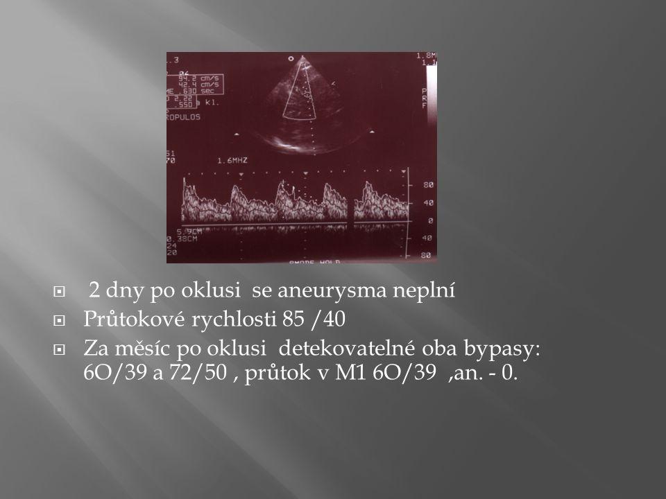  2 dny po oklusi se aneurysma neplní  Průtokové rychlosti 85 /40  Za měsíc po oklusi detekovatelné oba bypasy: 6O/39 a 72/50, průtok v M1 6O/39,an.
