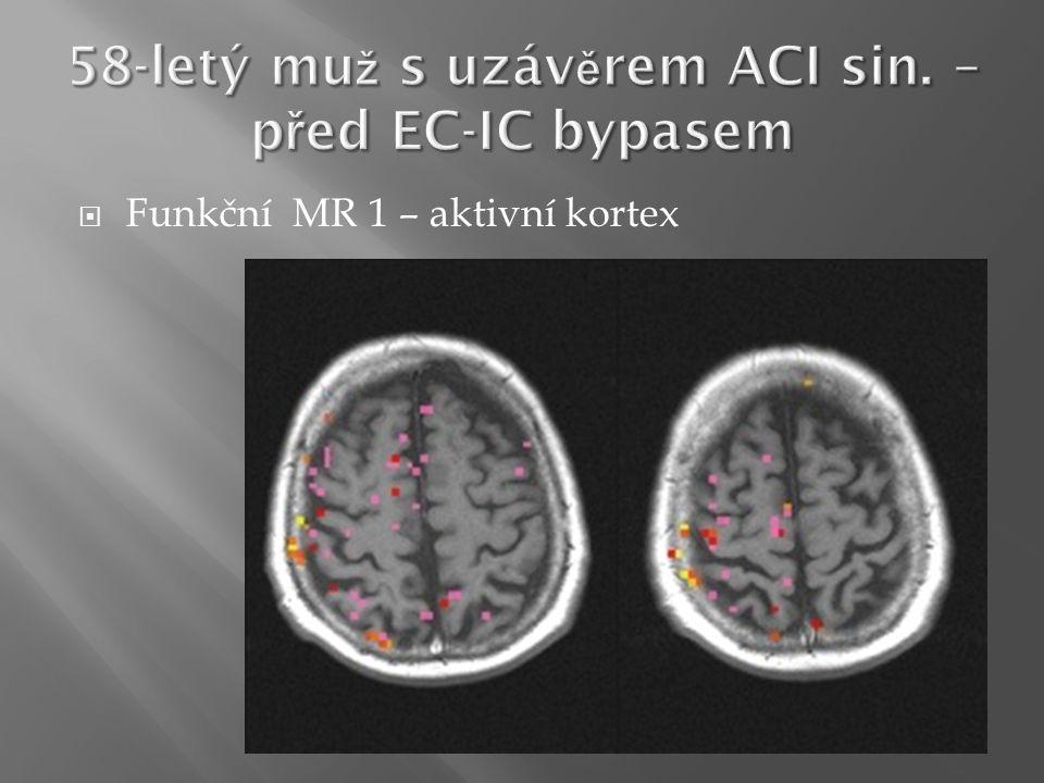  Funkční MR 1 – aktivní kortex