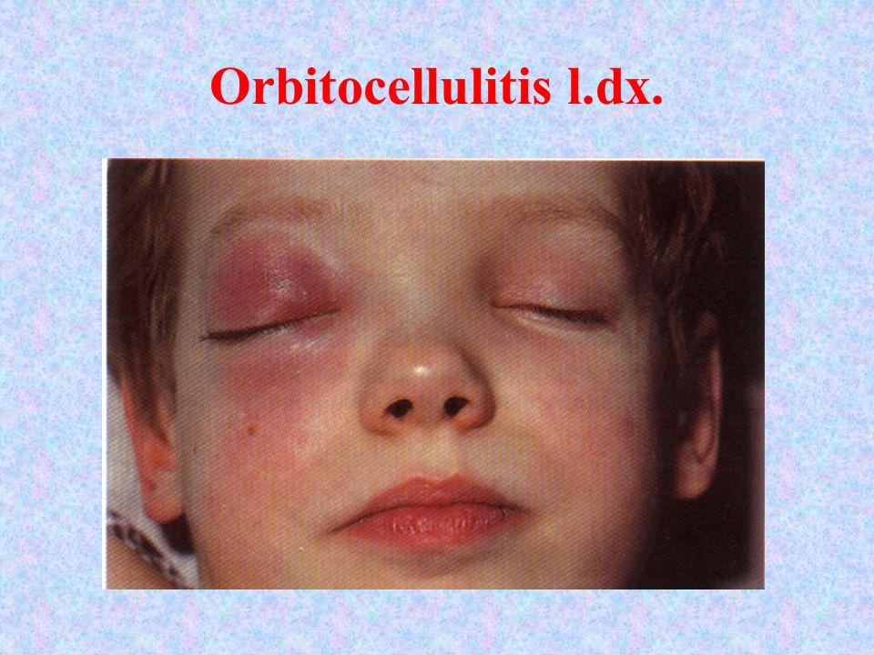 Orbitocellulitis l.dx.