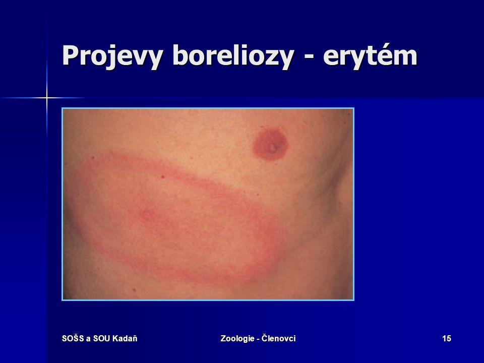 SOŠS a SOU KadaňZoologie - Členovci14 Lymeská borelioza Lymeská borelióza (LB) je komplexní onemocnění vyvolané bakteriemi Borrelia burgdorferi. Je to
