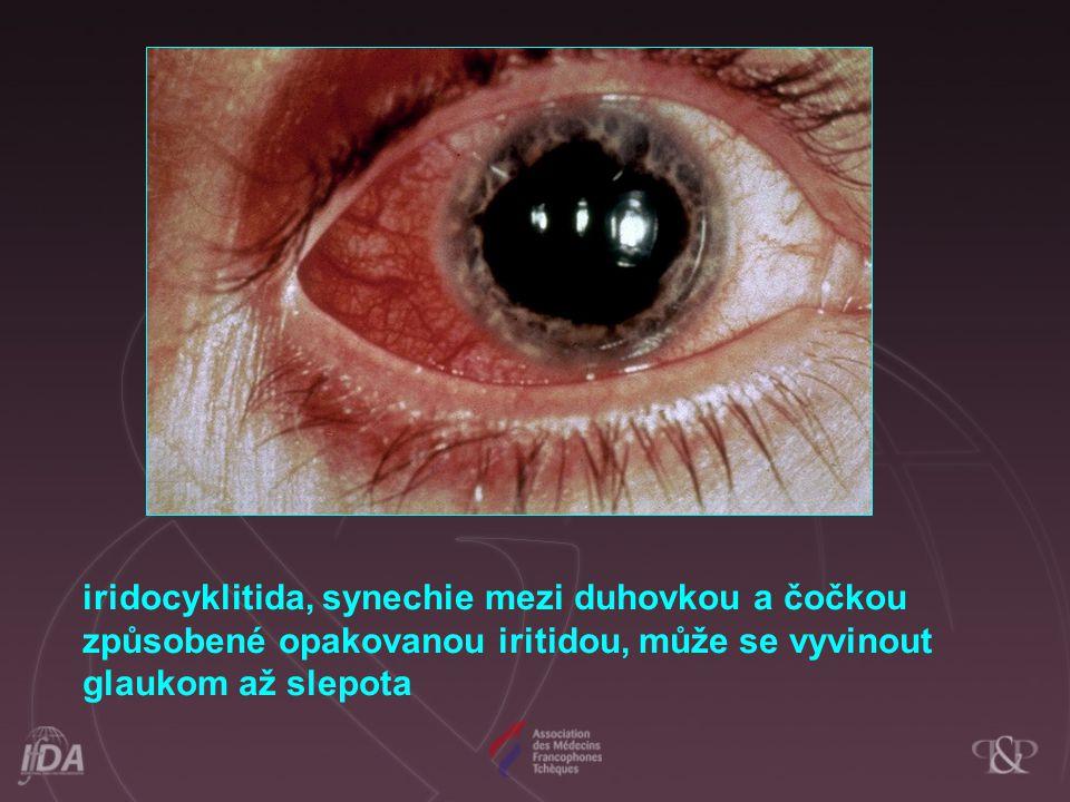 iridocyklitida, synechie mezi duhovkou a čočkou způsobené opakovanou iritidou, může se vyvinout glaukom až slepota