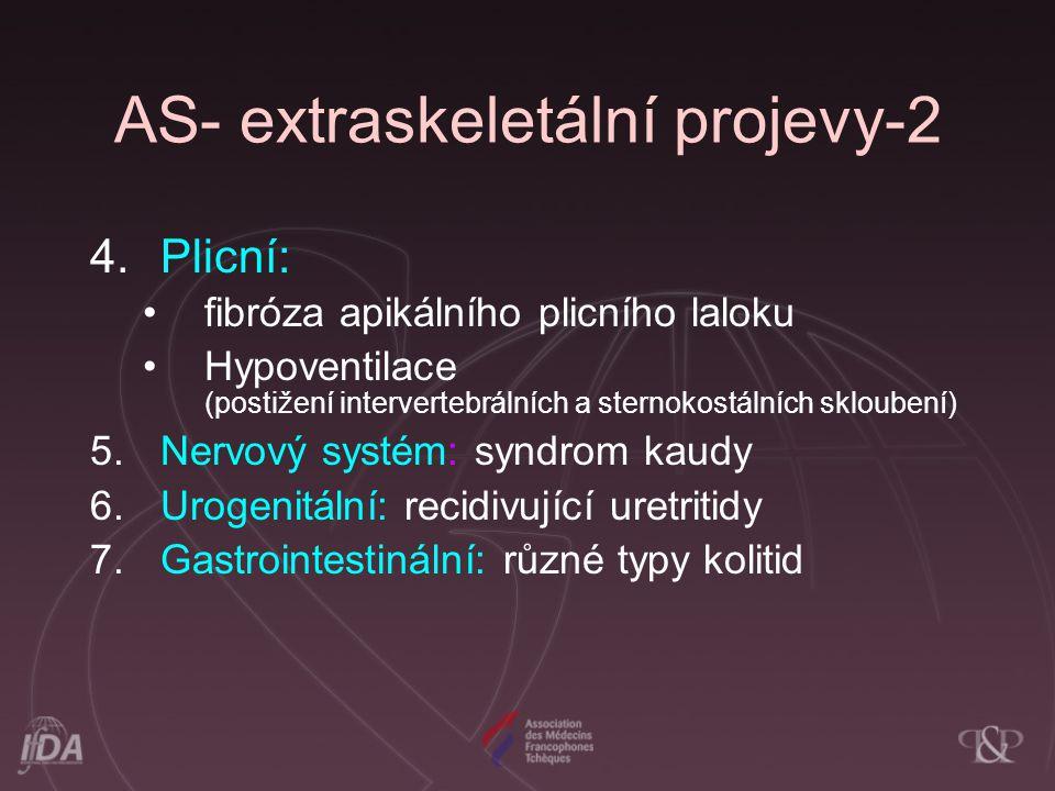 AS- extraskeletální projevy-2 4.Plicní: fibróza apikálního plicního laloku Hypoventilace (postižení intervertebrálních a sternokostálních skloubení) 5