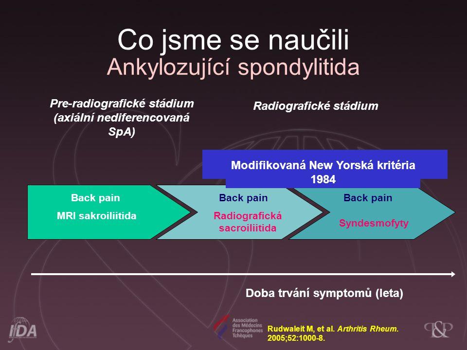 Doba trvání symptomů (leta) Back pain Radiografická sacroiliitida Back pain Syndesmofyty Pre-radiografické stádium (axiální nediferencovaná SpA) Radio