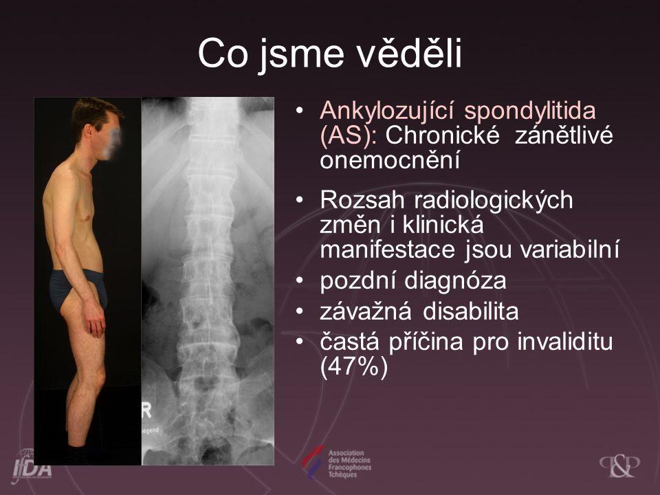Co jsme věděli Ankylozující spondylitida (AS): Chronické zánětlivé onemocnění Rozsah radiologických změn i klinická manifestace jsou variabilní pozdní