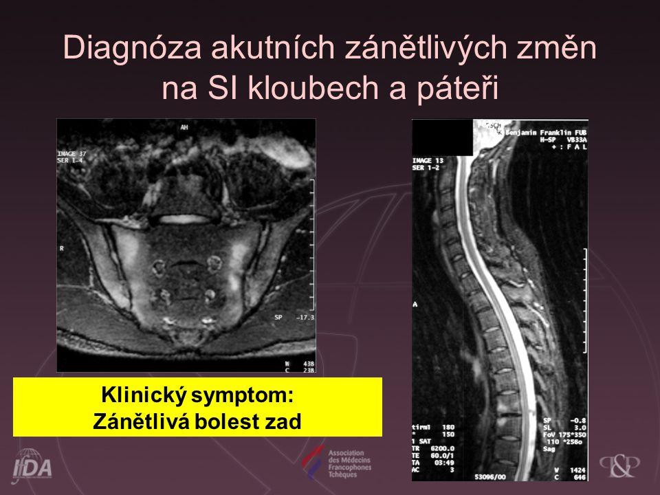 Diagnóza akutních zánětlivých změn na SI kloubech a páteři Klinický symptom: Zánětlivá bolest zad
