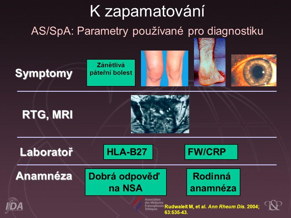 Dobrá odpověď na NSA Symptomy RTG, MRI Laboratoř Anamnéza Zánětlivá páteřní bolest FW/CRP Rudwaleit M, et al. Ann Rheum Dis. 2004; 63:535-43. HLA-B27