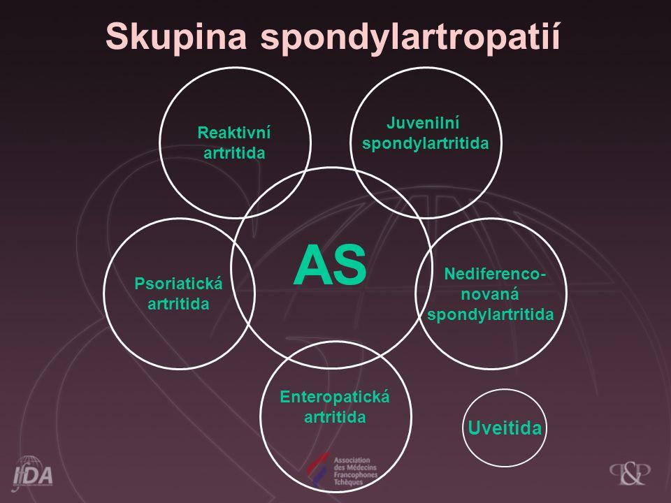 Skupina spondylartropatií AS Nediferenco- novaná spondylartritida Juvenilní spondylartritida Enteropatická artritida Psoriatická artritida Reaktivní a