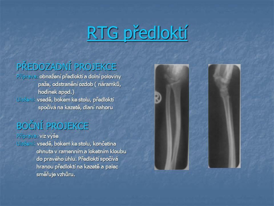 RTG předloktí PŘEDOZADNÍ PROJEKCE Příprava: obnažení předloktí a dolní poloviny paže, odstranění ozdob ( náramků, paže, odstranění ozdob ( náramků, ho