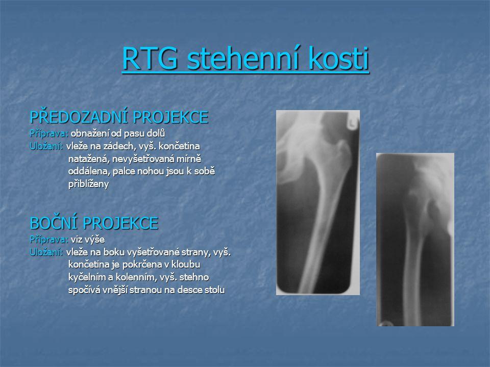 RTG stehenní kosti PŘEDOZADNÍ PROJEKCE Příprava: obnažení od pasu dolů Uložení: vleže na zádech, vyš. končetina natažená, nevyšetřovaná mírně natažená
