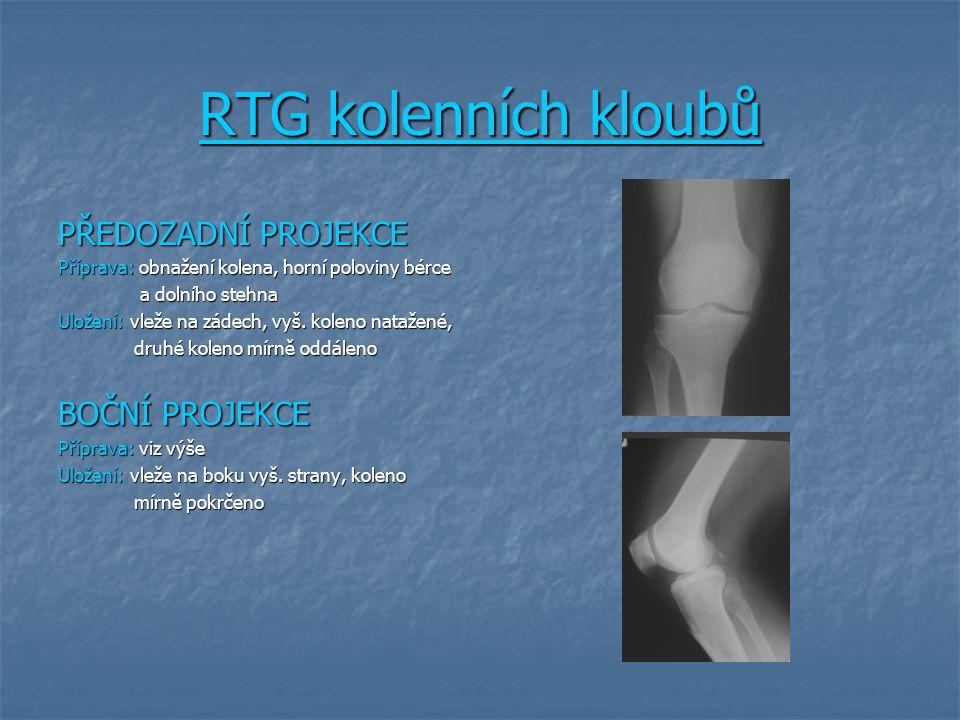 RTG kolenních kloubů PŘEDOZADNÍ PROJEKCE Příprava: obnažení kolena, horní poloviny bérce a dolního stehna a dolního stehna Uložení: vleže na zádech, vyš.