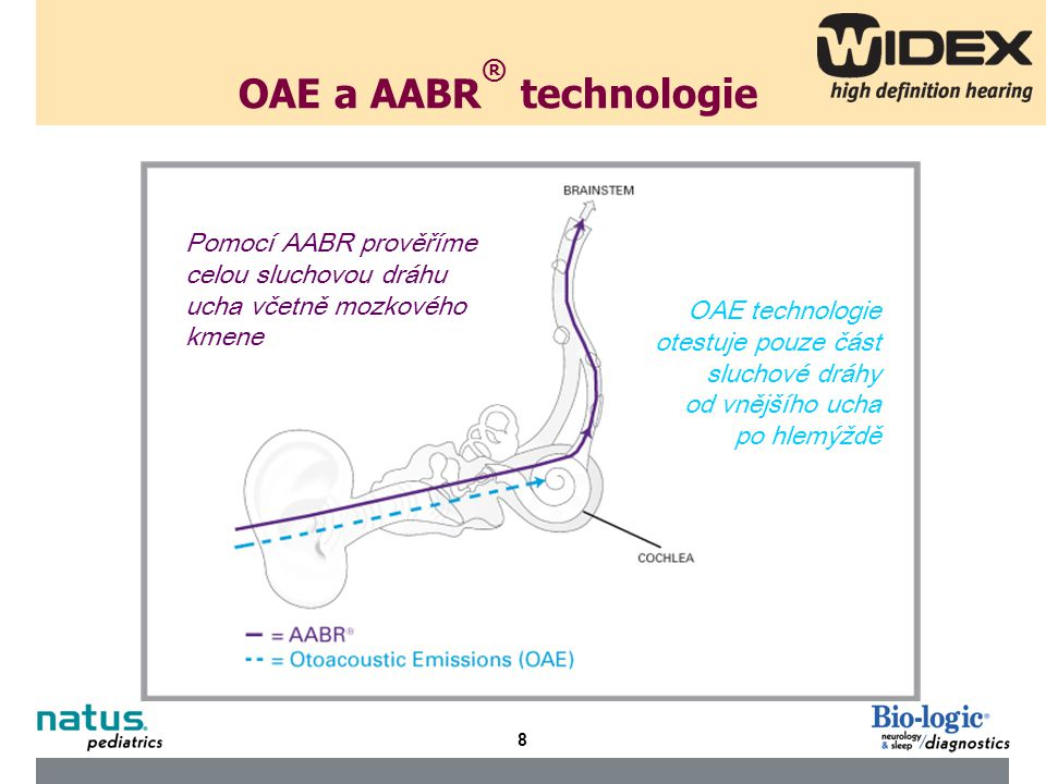 9 OAE a ABR An Otoacoustic Emissions (OAE) test measures sound waves produced by the inner ear.
