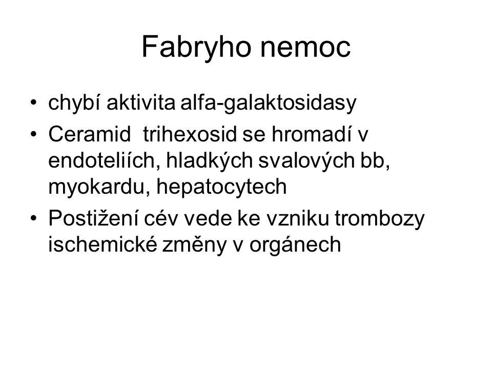 Fabryho nemoc chybí aktivita alfa-galaktosidasy Ceramid trihexosid se hromadí v endoteliích, hladkých svalových bb, myokardu, hepatocytech Postižení cév vede ke vzniku trombozy ischemické změny v orgánech
