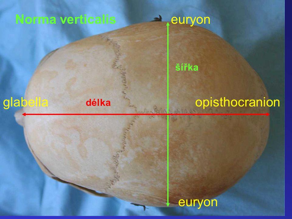 Norma verticalis šířka délka glabellaopisthocranion euryon