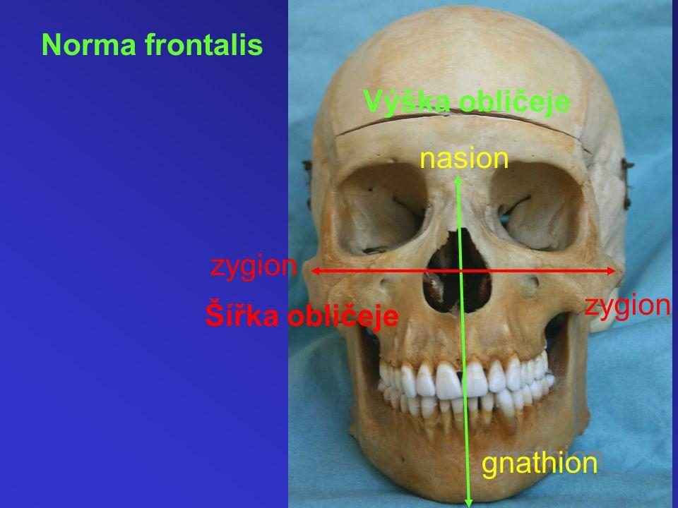 Norma frontalis Výška obličeje Šířka obličeje zygion gnathion nasion