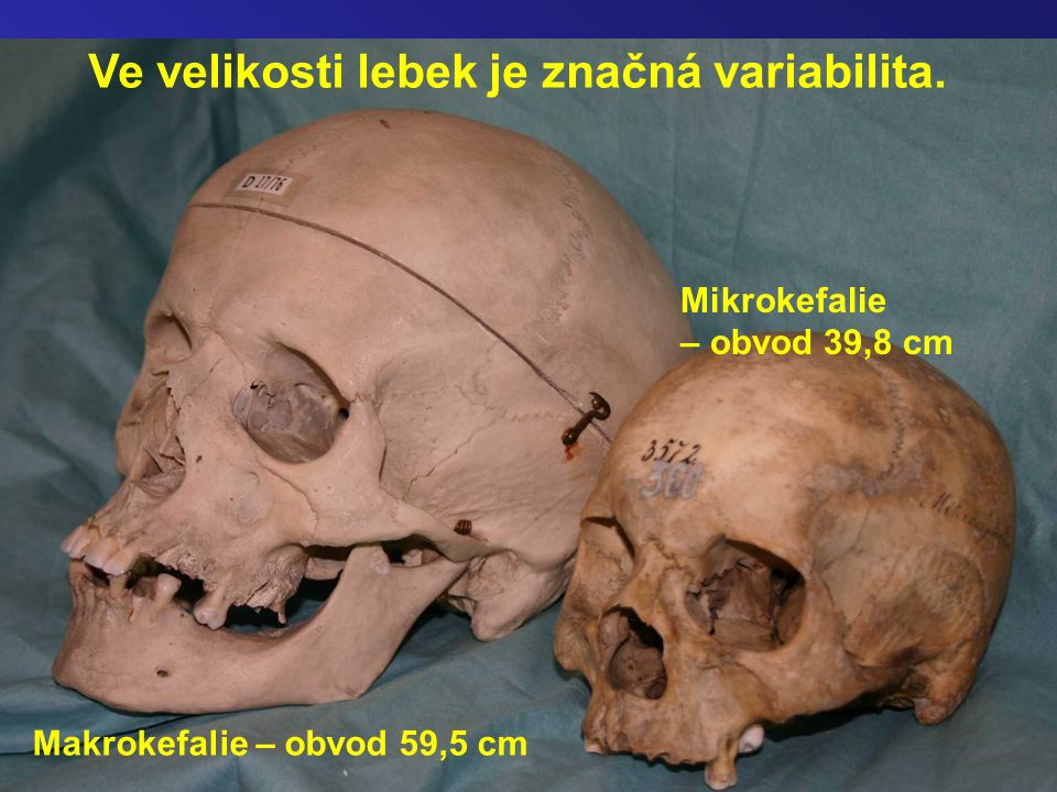 Ve velikosti lebek je značná variabilita. Makrokefalie – obvod 59,5 cm Mikrokefalie – obvod 39,8 cm