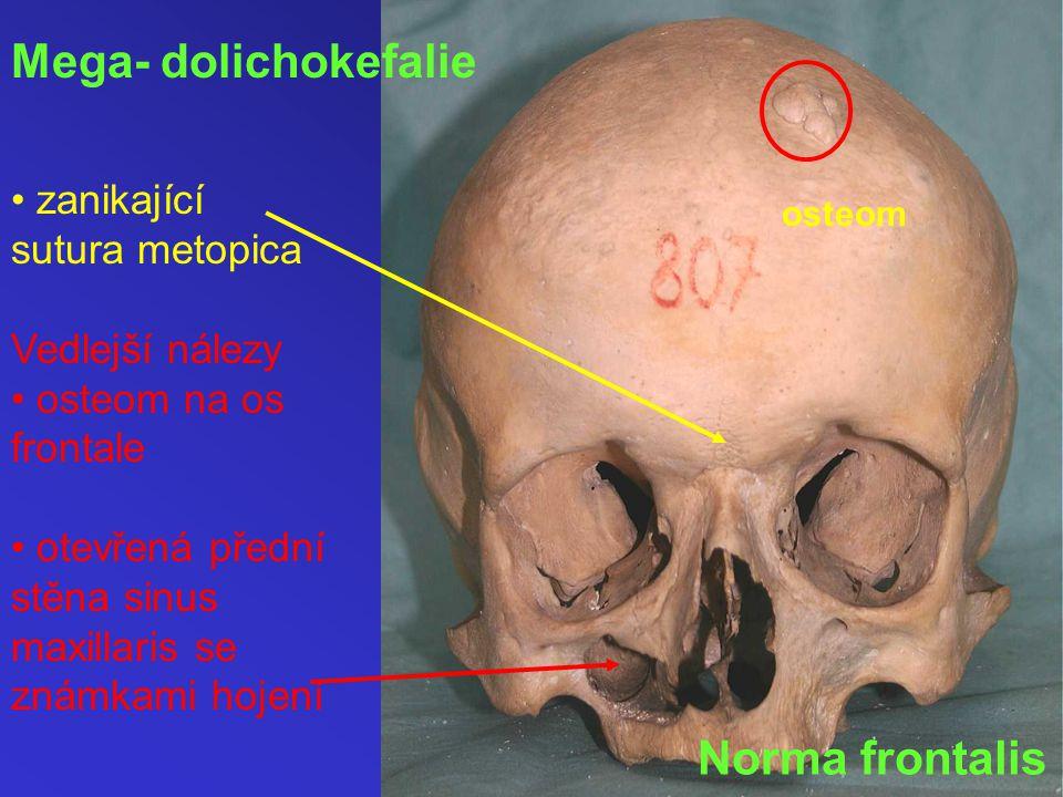 Norma frontalis Mega- dolichokefalie zanikající sutura metopica Vedlejší nálezy osteom na os frontale otevřená přední stěna sinus maxillaris se známkami hojení osteom
