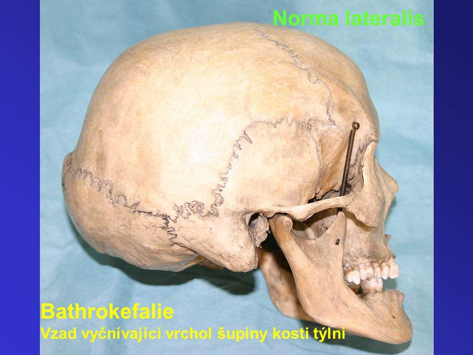 Bathrokefalie Vzad vyčnívající vrchol šupiny kosti týlní Norma lateralis